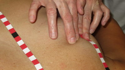 The Medical Tactile Examiners (MTEs) use self-adhesive stripes with tactile orientation points to identify abnormalities in the breast. Credit: Dr. Frank Hoffmann, Discovering Hands.