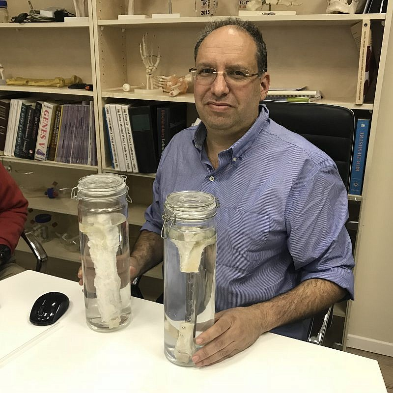 Dr. Shai Meretzki, CEO of Bonus BioGroup, with a lab-grown bone. Credit: Bonus BioGroup.
