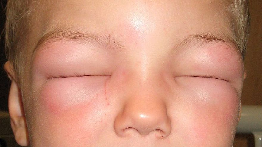 This child suffers from anaphylaxis and cannot open his eyes due to swelling. James Heilman, M.D., Wikimedia Commons.