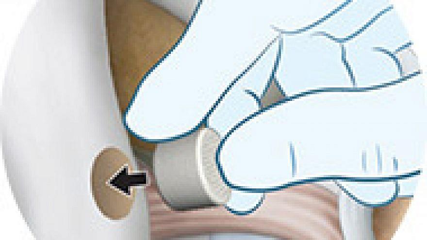 Inserting the Agili-C implant into damaged bone. Source:  Cartiheal.com