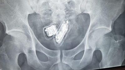 An X-ray image of a phone smuggled inside an inmate. Photo: Israel Prison Service (Israel Hayom).