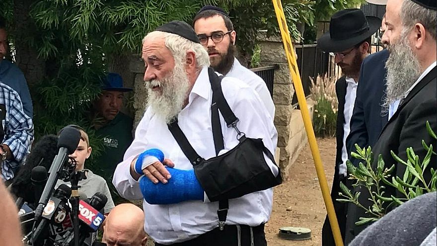 Rabbi Yisroel Goldstein lost his right index finger in the synagogue shooting on April 27, 2018, at Chabad of Poway in Southern California. Credit: Twitter.