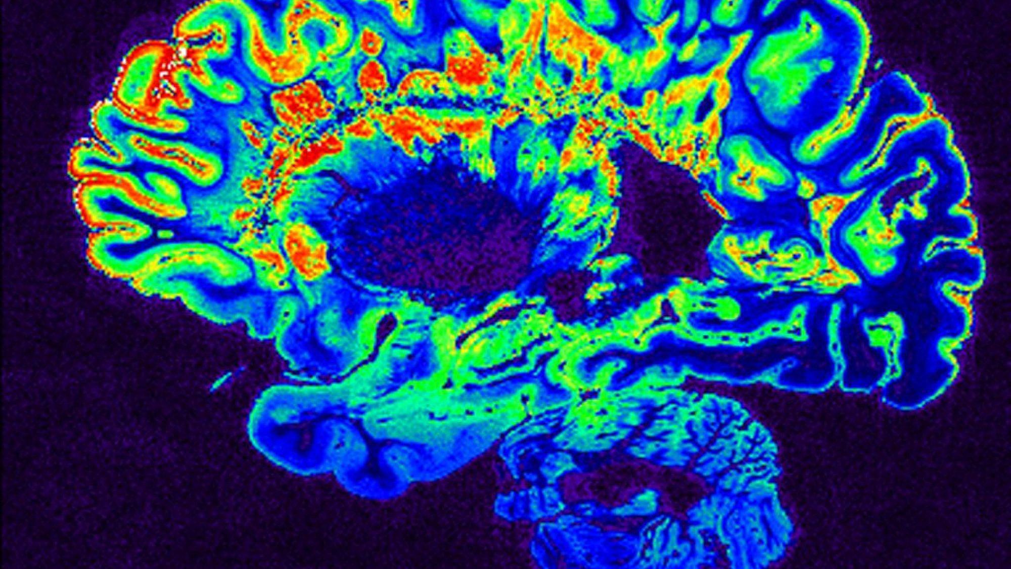 Israeli researchers create MRI technique to predict diseases, start