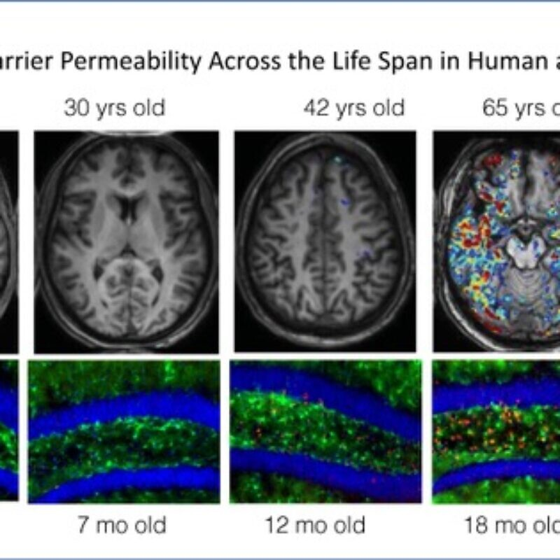 In mice and humans, the blood brain barrier becomes leaky with age. Researchers at Ben-Gurion University of the Negev and the University of California, Berkeley, have found new diagnostic ways to measure leaking and are developing a drug that can reverse the effects, and enhance cognitive ability with age. Credit: Courtesy.